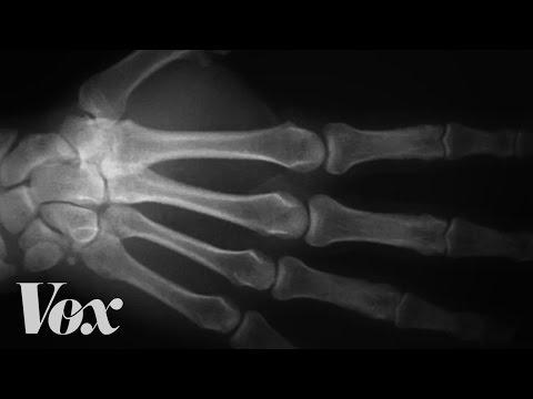 Here's What Happens To Your Knuckles When You Crack Them