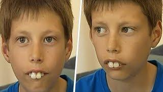 HE WAS BULLIED BECAUSE OF HIS RABBIT TEETH. BUT A FEW YEARS LATER HE SURPRISED EVERYONE!