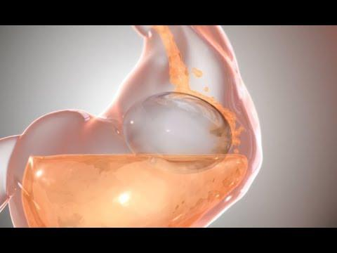 Balloons That Live In Your Stomach - Your Daily Dose Of Internet