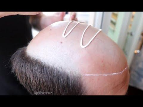 Glue For Your Bald Head - Your Daily Dose Of Internet
