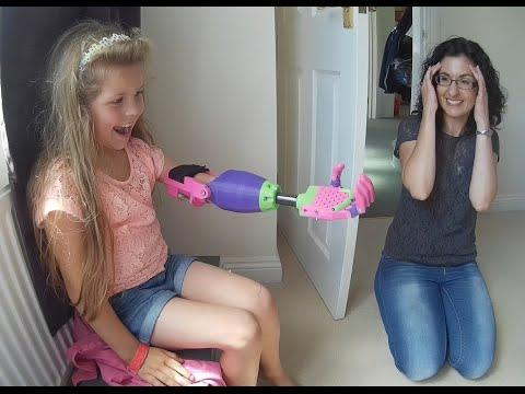 Isabella Gets Pink Prosthetic Arm